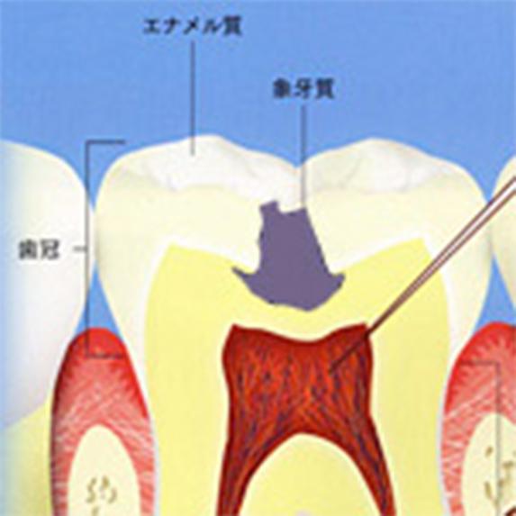 ぞうげ質まで穴が開いたむし歯