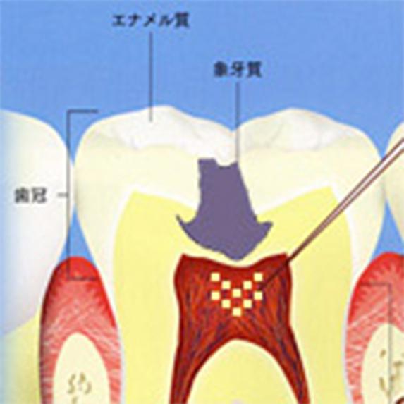 歯ずいまで進んだむし歯