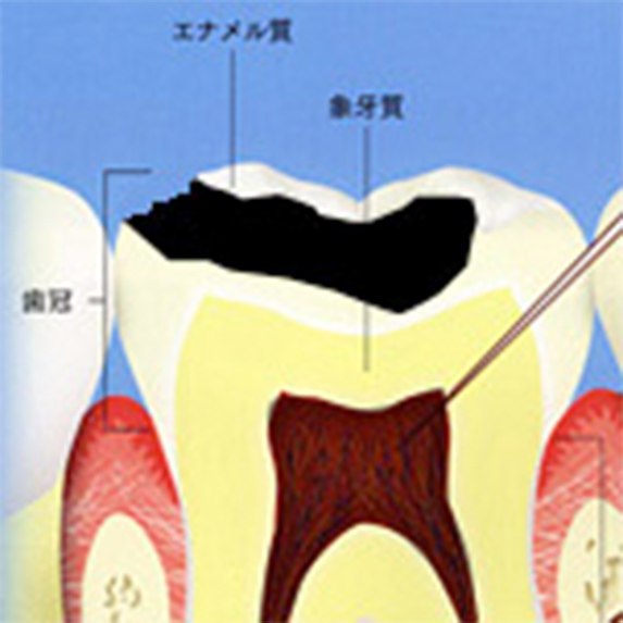 さらにむし歯が進んだ状態